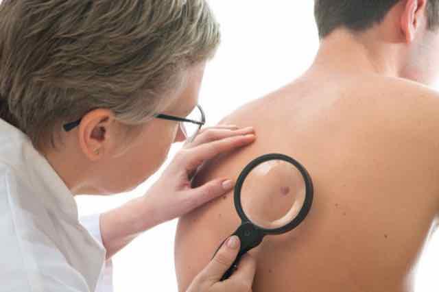 Câncer de pele: Cuidados, prevenção e tratamento